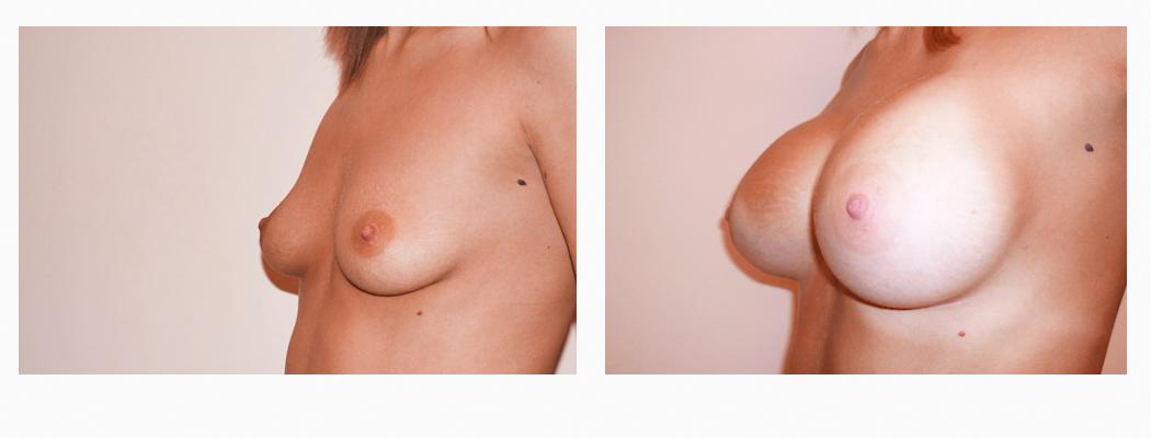 implant-ia-2