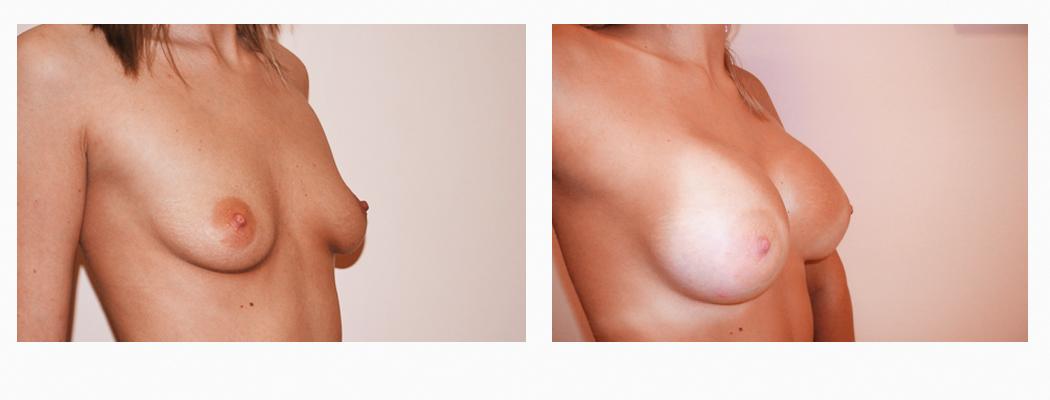 implant-ia-3