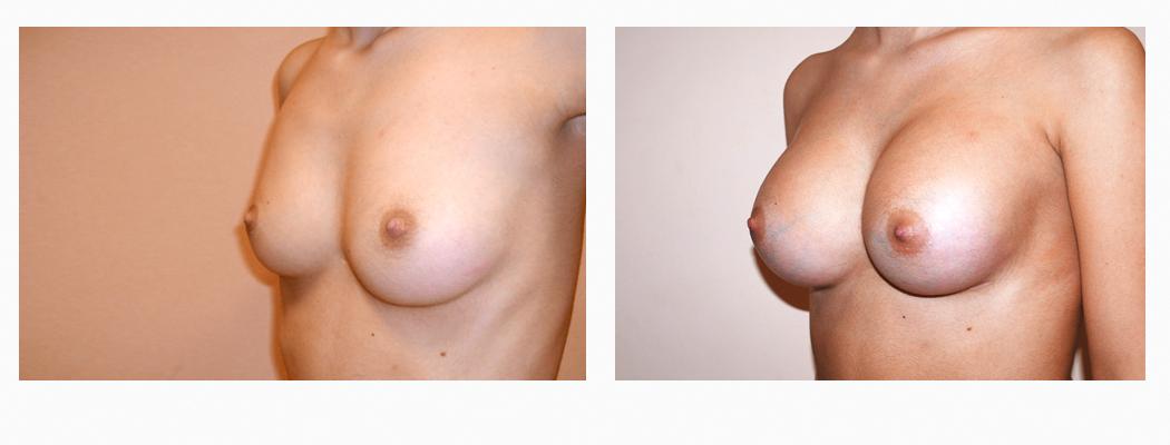 implant-nm-2