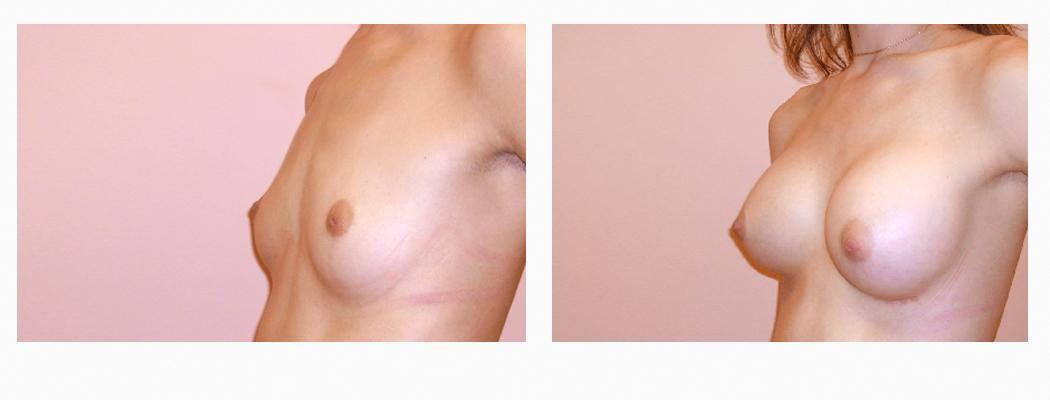 implanturi-tm-3