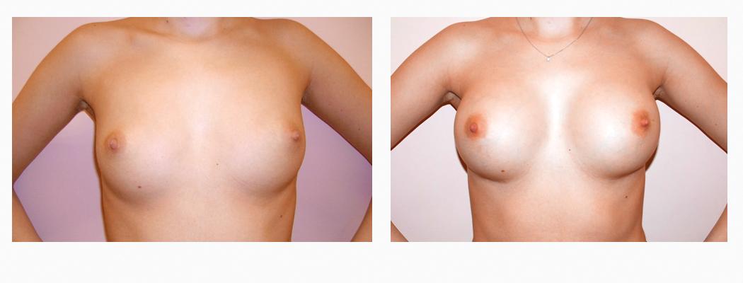 implanturi-tmar-1