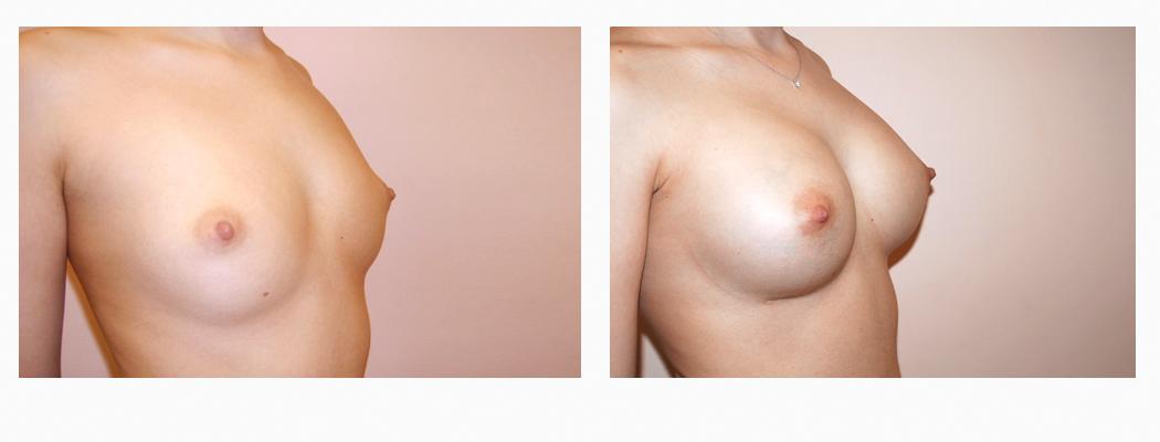 implanturi-tmar-2
