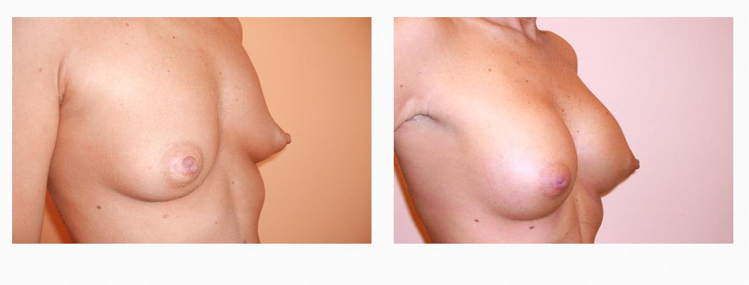 implanturi-u-2