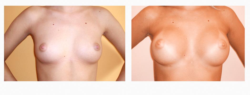 implanturi-um-1
