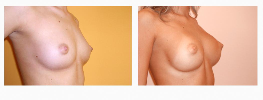 implanturi-um-3