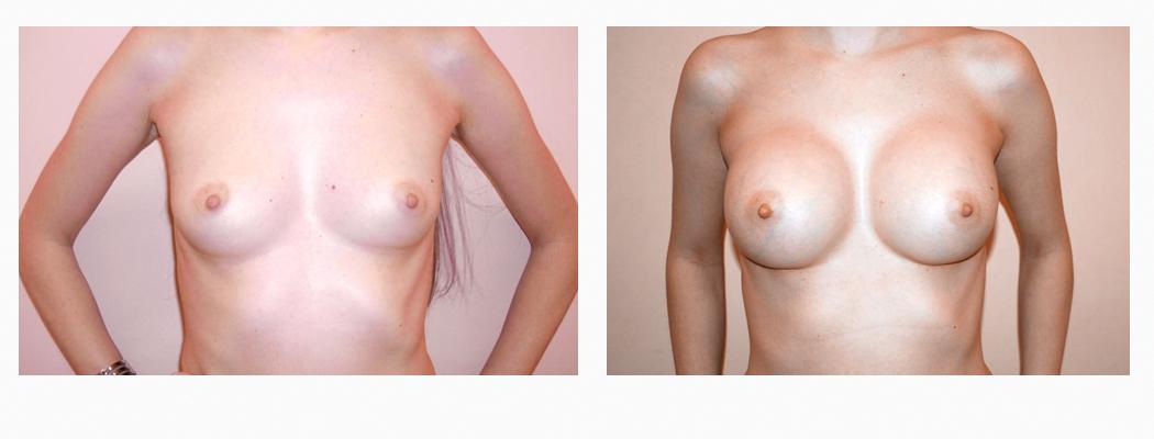 implanturi-ve-1