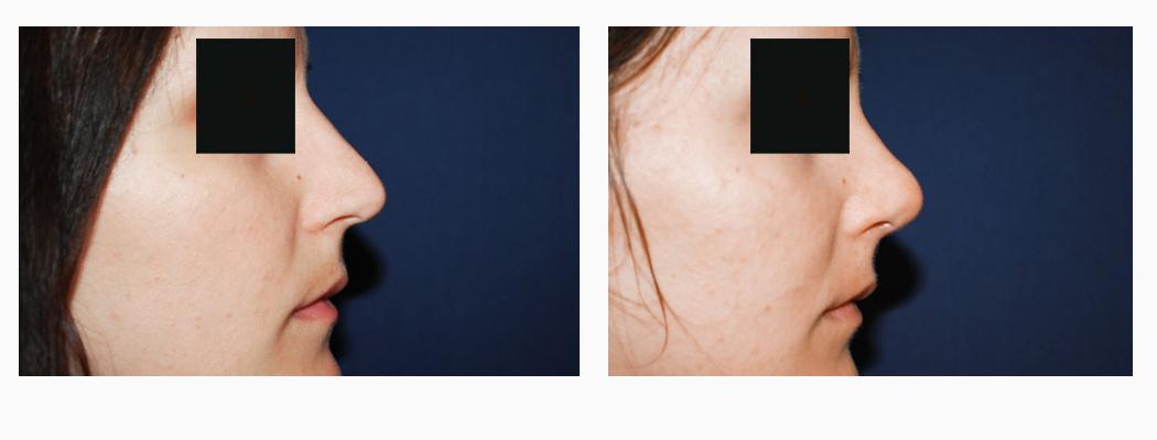 rinoplastie-manca-3